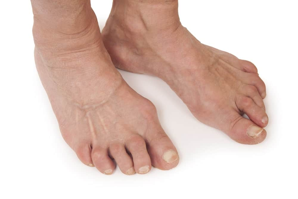 A woman's feet deformed from rheumatoid arthritis
